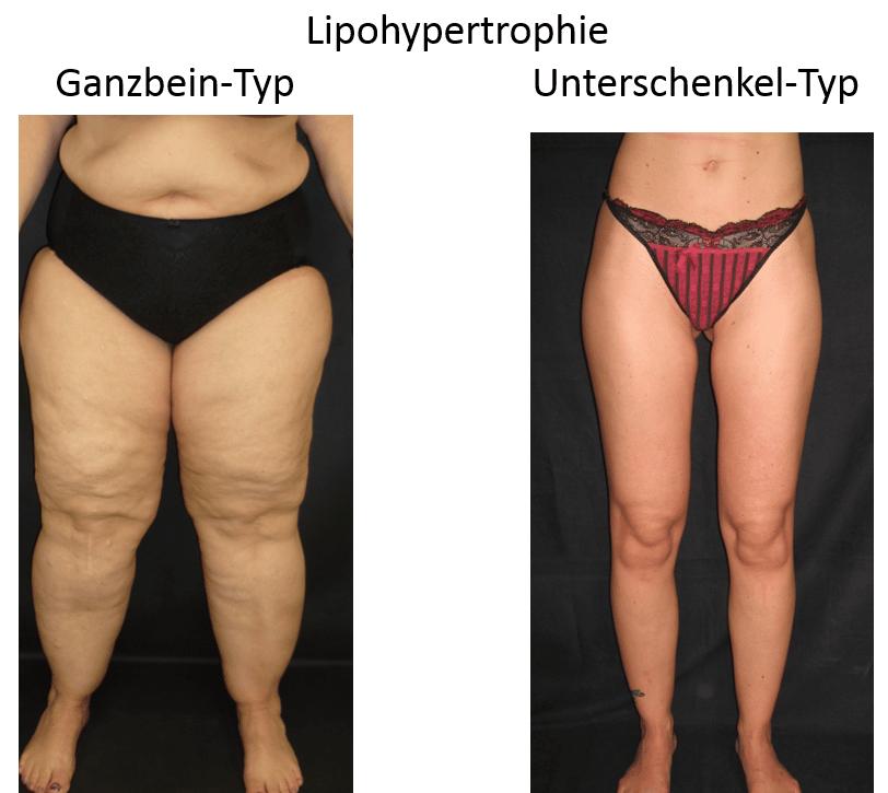 Lipödem - Lipohypertropie